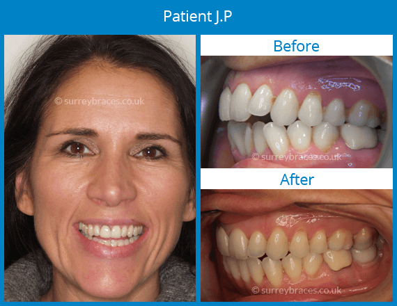 Invisalign braces Webridge