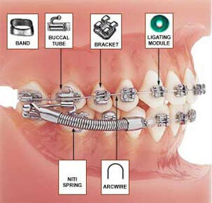 Orthodontic Breakages